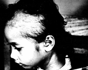 A Rongelapese victim of the Bravo test in 1954 taken from a US government publication